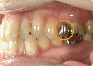 差し歯 術前