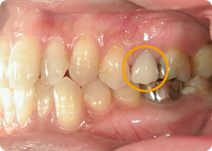 差し歯 術後