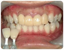 仮歯+ホワイトニング